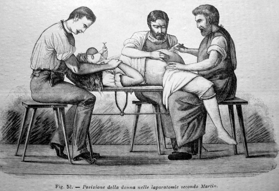 enciclopedia medica it. laparatomia antica